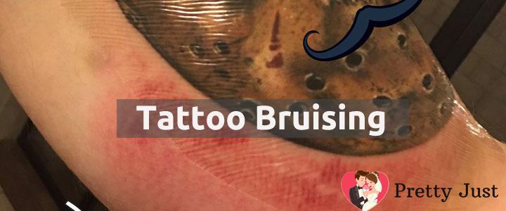 Tattoo Bruising